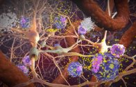 Random42 Science In Motion – Macrophages in Traumatic Brain Injury